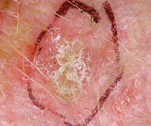 Kardiyüürüroz: semptomlar, nedenler, teşhis ve tedavi yöntemleri 77
