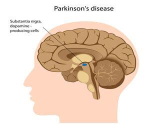 Parkinson  Hastal���